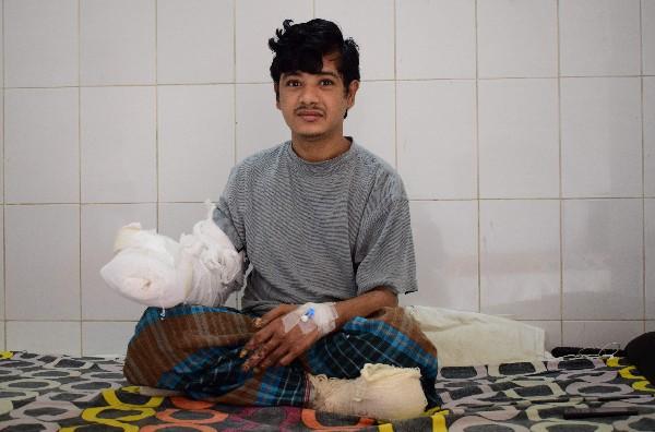 Abul Bajandar sufre epidermodisplasia verruciforme y lleva en tratamiento 10 meses.(EFE).