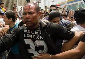 Danny José Subero, 34 años, luego de ser golpeado en Cabudare, Venezuela, murió en el estado Lara, en el oeste de Venezuela, a manos de un grupo de personas que lo golpeó y le disparó en varias ocasiones (Foto Prensa Libre: EFE).
