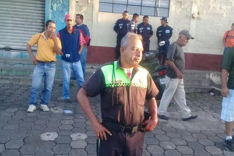 El agente de la PMT Julio Leonel Cordero Díaz, de 55 años, resultó con golpes en el rostro. (Foto Prensa Libre: Cristian Soto)