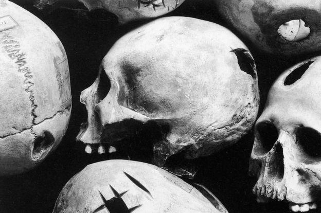 También en Perú hubo trepanación, como evidencian estos modelos de cráneos encontrados en excavaciones en el país. ALAMY