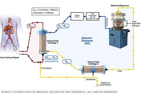 Circuito del reservorio esferoide del hígaro artificial, desarrollado por la Clínica Mayo. (Foto Prensa Libre, tomada de Clínica Mayo)