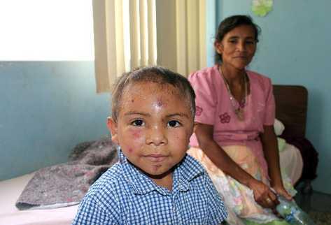 José izabel Lorenzo  permanece recluido en Hospital Nacional de Jalapa, en compañía de su madre.