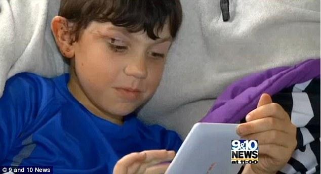 Ethan Nokes se recupera ahora de las heridas físicas y el trauma que le dejó la experiencia. (Foto Prensa Libre: Dailymail).