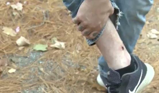 La víctima logró recuperarse luego de un tratamiento hospitalario. (Foto Prensa Libre: WCVB)
