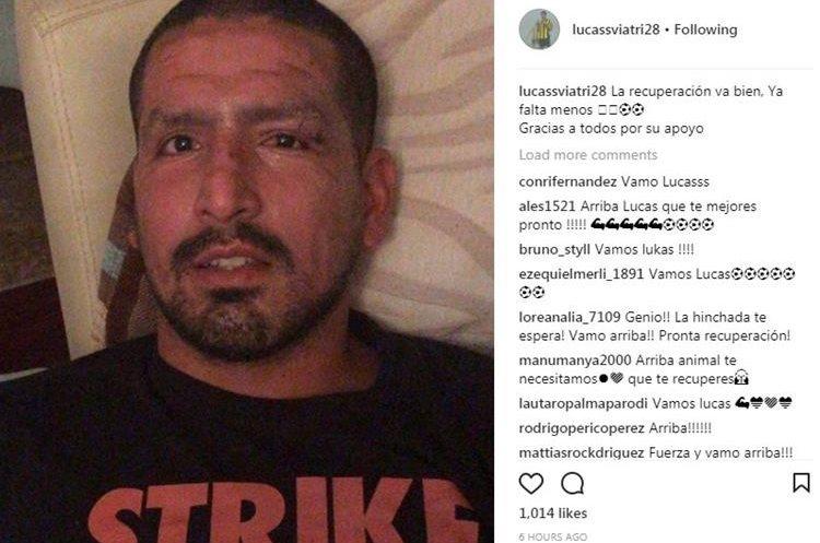 Jürgen Damm sufre quemaduras en la cara con pirotecnia