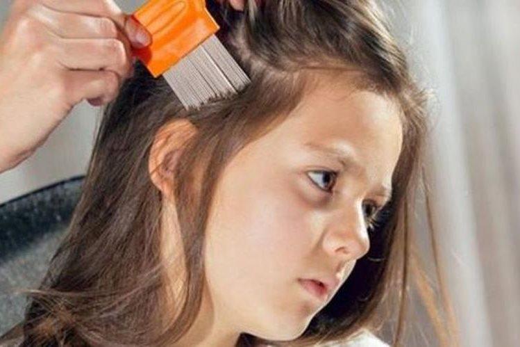Los piojos son muy difíciles de combatir. Sólo en Estados Unidos, al menos 12 millones de niños están afectados cada año. (THINKSTOCK)