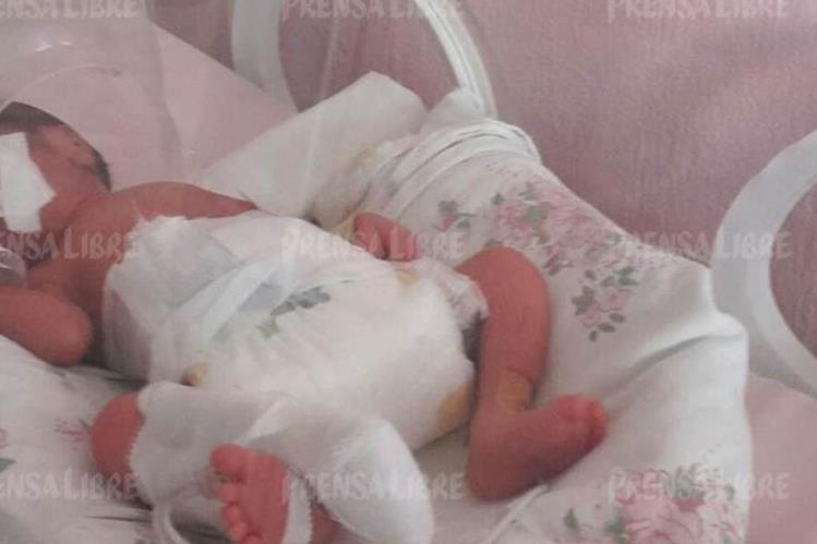 Una de las trillizas que nació en el Hospital Nacional de Retalhuleu. (Foto Prensa Libre: Rolando Miranda)