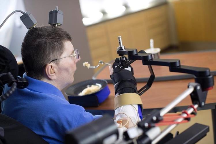 Tetrapléjico de 53 años logra realizar movimientos autónomos como comer y beber. (Foto Prensa Libre, AFP)