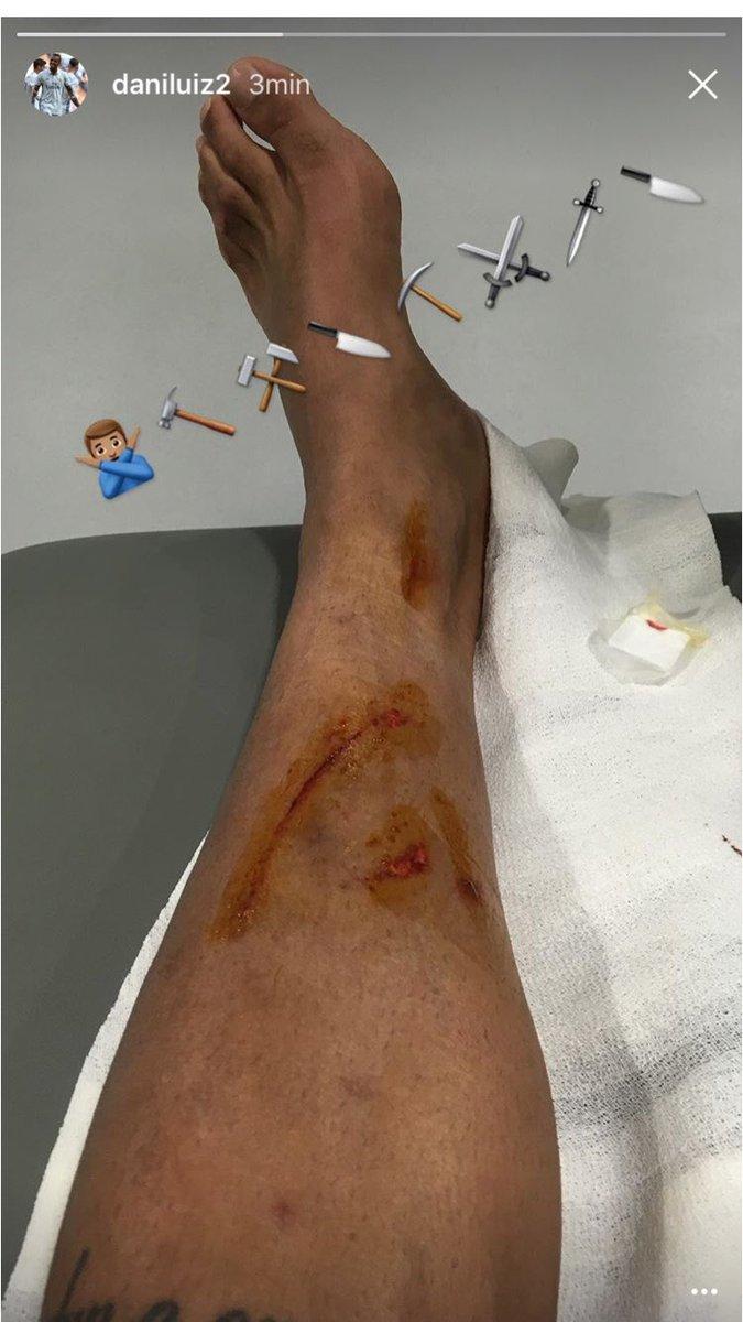 Está es la fotografía que circula por las redes sociales de como quedó la pierna de Danilo. (Foto Prensa Libre: Twitter)