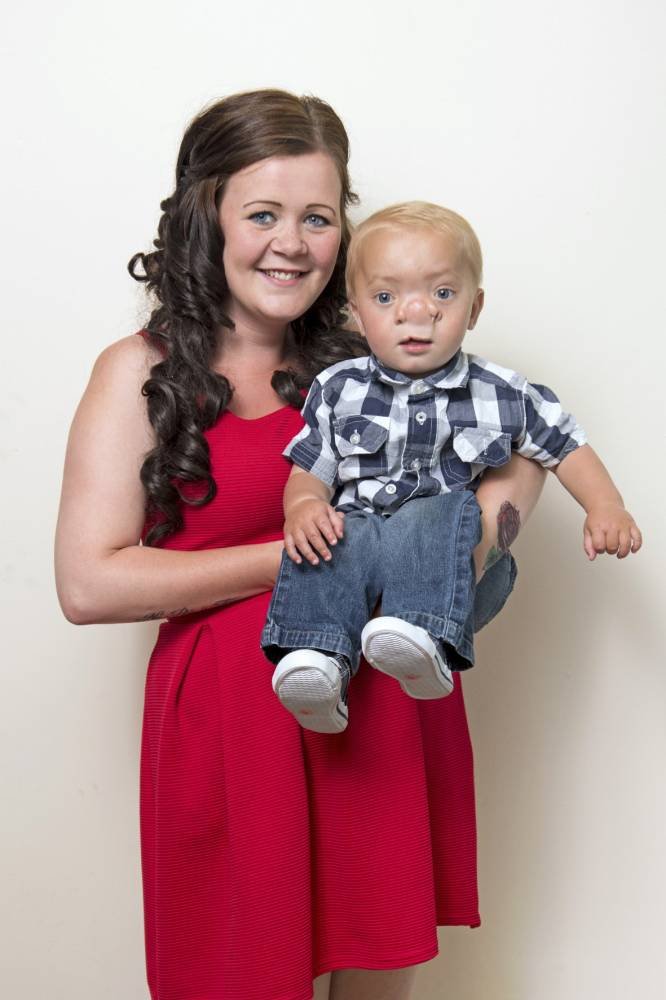Pic By HotSpot Media - BOY WHOSE BRAIN GREW IN NOSE IS REAL-LIFE PINOCCHIO - IN PIC - Amy Poole, 22, with son Ollie Trezise, now 21-months-old. - A little boy whose brain grew inside his nose has been described as the
