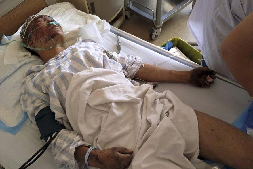 Un hombre, de los más de 400 heridos, recibe atención médica en un hospital de Tianjin. (Foto Prensa Libre: AP).