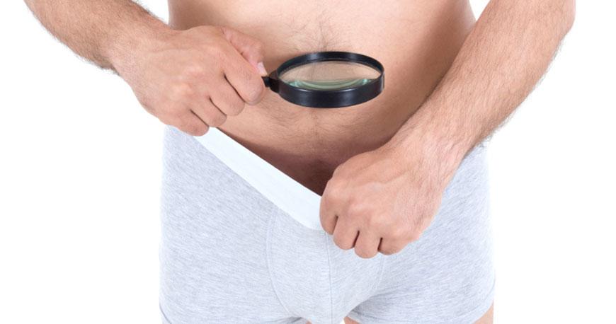 Cirugía impide el paso de espermatozoides y así evitar la concepción.
