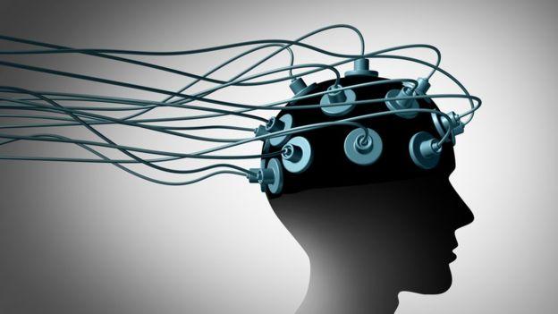 Los electrodos se utilizaron para conocer la actividad cerebral ante diferentes estímulos (GETTY IMAGES).