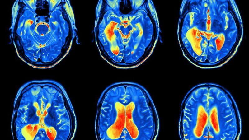 La pérdida de líquido cefalorraquídeo afecta a cinco de cada 100.000 personas al año. (iStock).