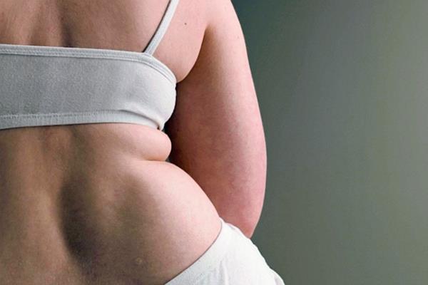 Una mujer obesa tiene 40 por ciento más riesgo de desarrollar algún tipo de cáncer. (Foto Prensa Libre, tomada de ella.paraguay.com)