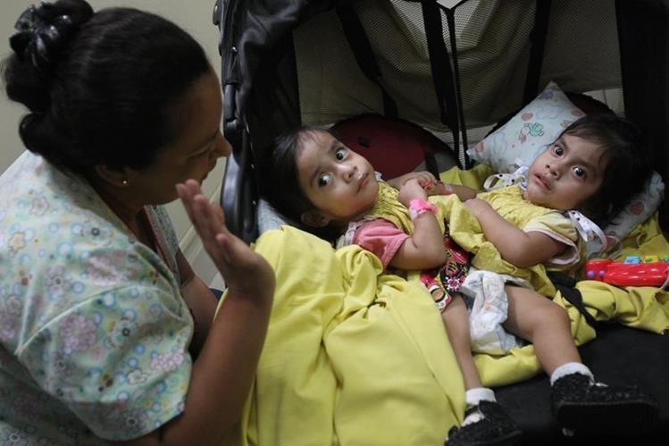 Las hermanas Aída Rosalina y Ana Rosa fueron separadas el martes de la semana pasada en el Hospital Roosevelt. (Foto Prensa Libre: Hemeroteca PL)