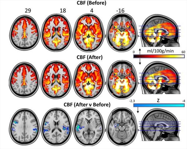 Este esta es una tomografía de uno de los pacientes estudiados. (Foto Prensa Libre: www.nature.com)