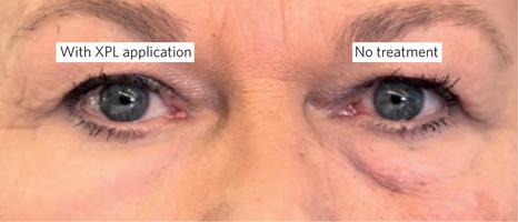 El impacto visual después de aplicar la piel XPL al área del párpado inferior evidencia cómo se disimula la bolsa. (Foto Prensa Libre, tomado del sitio del MIT).