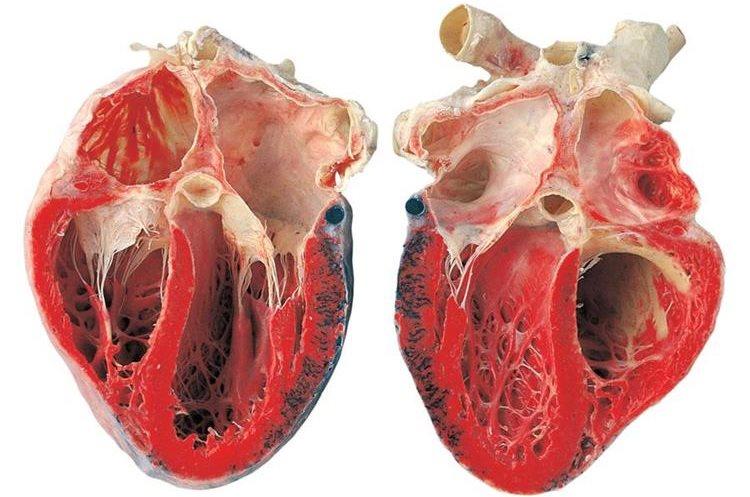 Los órganos también serán parte de la exhibición.    (Foto Prensa Libre: Cortesía Body Worlds)