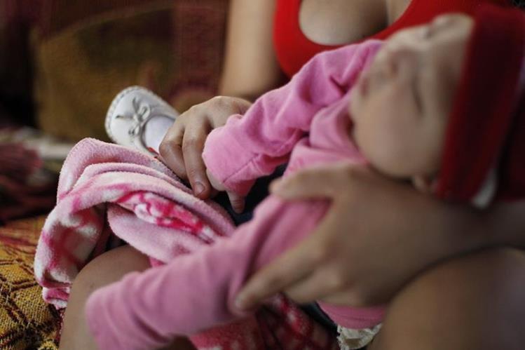 El zika en mujeres embarazadas puede causar microcefalia del bebé. (Foto Prensa Libre: Hemeroteca PL)