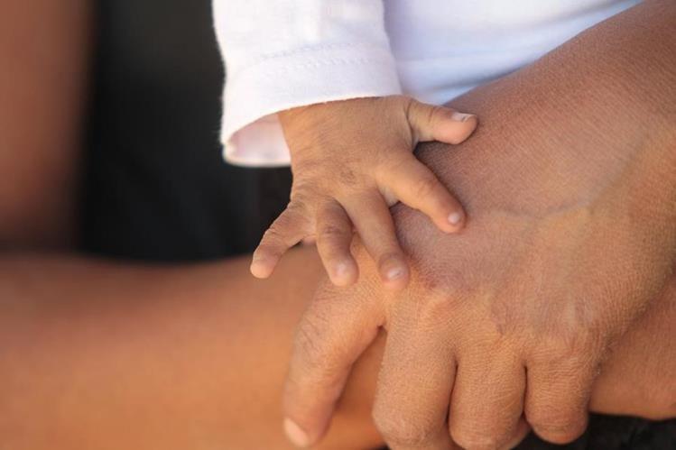 Una niña de 1 año de edad padece desnutrición aguda severa, por falta de alimentos. (Foto Prensa Libre: Érick Ávila)