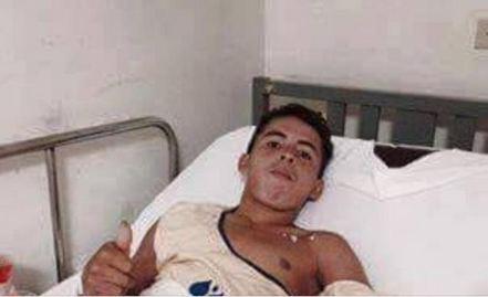 William Noé Reyes Martínez, perdió una pierna en su intento de abordar el tren La Bestia. (Foto Prensa Libre: Conamigua)