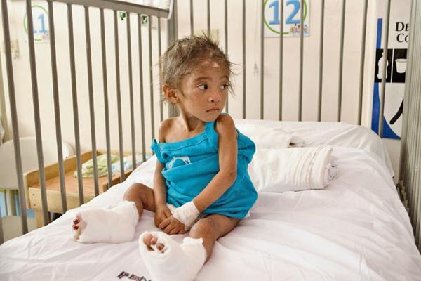 Blanca Estela  Lorenzo, de 3 años,   se recupera en el Hospital Regional de Cuilapa.