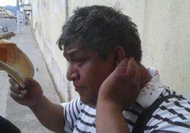 Ventura sufrió una herida en la cabeza mientras cubría unos operativos en Quetzaltenango. (Foto Prensa Libre)
