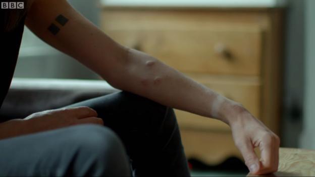 El cuerpo de Steve puede recuperarse después de inyectarse hemotoxina.