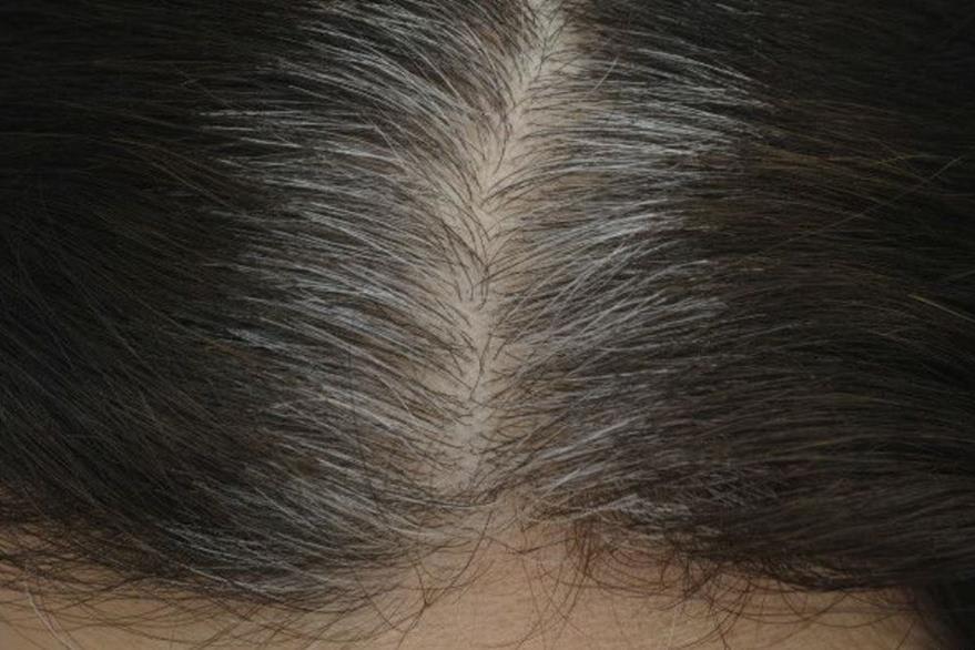 La razón está en las células madre de los folículos del cabello. (THINKSTOCK)