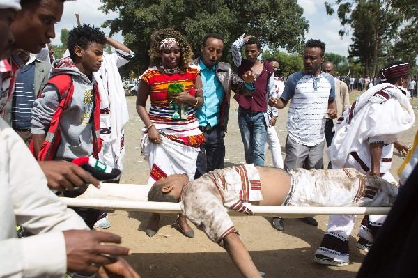 Etiopes observan a un hombre gravemente herido después de la estampida mortal.(AFP).