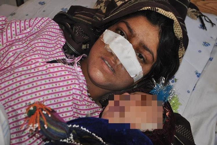 Reza Gul,20, junto a su pequeño hijo, en un hospital en la provincia de Faryab. (Foto Prensa Libre: AFP).