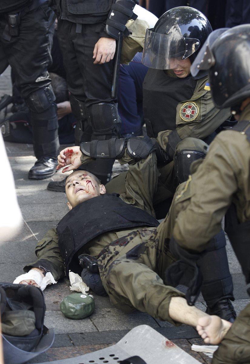 Un policía recibe ayuda después que quedó herido luego de los disturbios. (Foto Prensa Libre: AP).