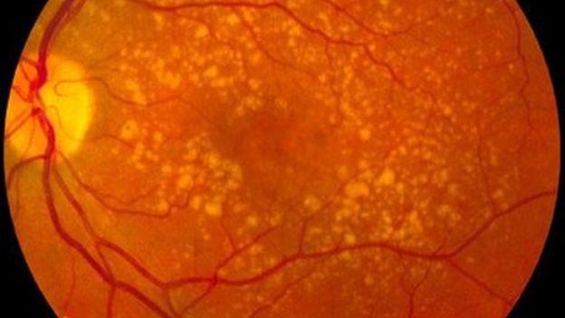Las pestañas LED también aumentan el riesgo de degeneración macular y el deterioro de la retina. WIKI COMMONS