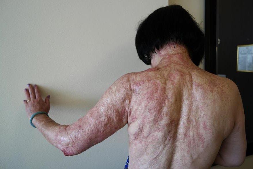 Kim Phuc muestra su cuerpo quemado y con múltiples cicatrices a causa del napalm que le cayó aquel 8 de junio de 1972. (Foto Prensa Libre: AP).