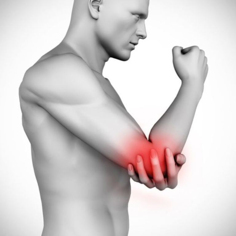 Algunos pacientes pueden experimentar dolor en los codos. (THINKSTOCK)