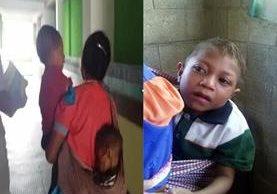 Alberto Arias Santiago, de 9 años, antes y después de haber sido recuperado de un cuadro de desnutrición severa. (Foto Prensa Libre: Astrid Morales