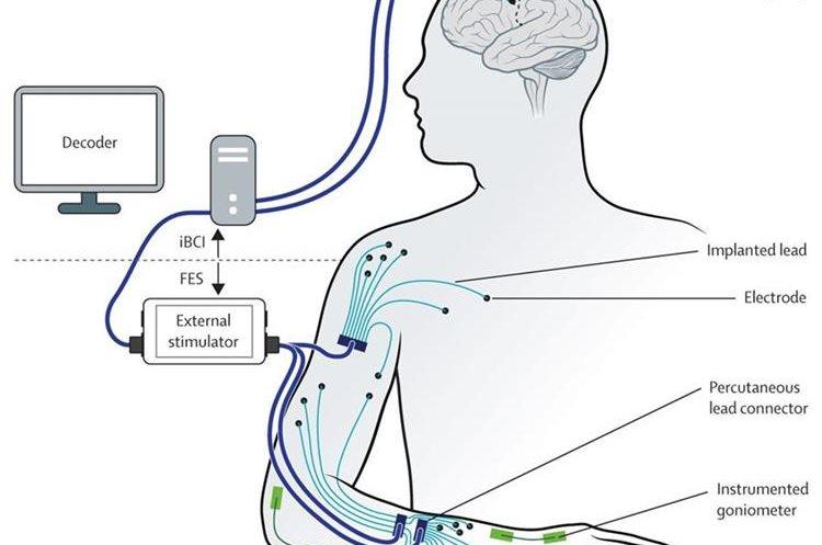 """Imagen facilitada por """"The Lancet"""" muestra un diagrama de restauración de movimientos mediante una estimulación muscular neural. (Foto Prensa Libre, AFP)."""