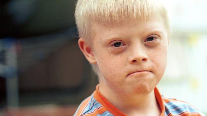 ¿Qué harías si te enteraras de que tu hijo va a nacer con síndrome de Down?
