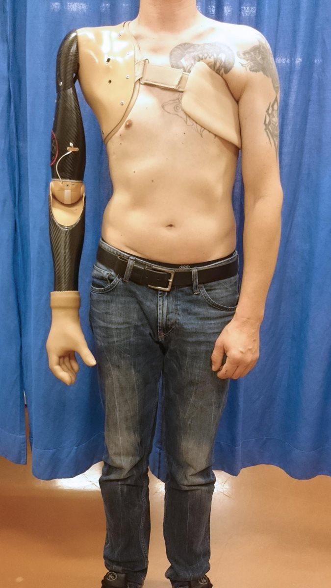 Imagen del sistema del sensor y prótesis robótica operada por un paciente que participó en el experimento. (Foto Prensa Libre, tomada del sitio del Imperial College London)