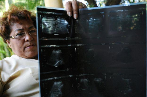 Los afectados sufren desde dolores de espalda y de articulaciones, pasando por visión borrosa y quistes, hasta fibromialgia y cáncer. GETTY IMAGES