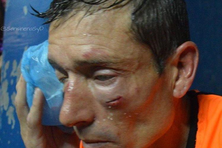 El árbitro Claudio Elichiri recibió fuerte golpes en el rostro durante el duelo Sarmiento de Ayacucho y Sansinena. (Foto Prensa Libre: Cortesía @SansinenaSyD).