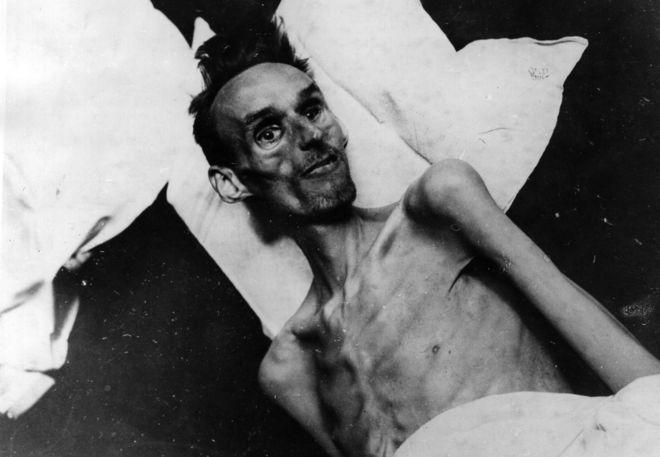 La hambruna holandesa causó estragos en un sector de la población y modificó para siempre la salud de muchos sobrevivientes. KEYSTONE/GETTY IMAGES