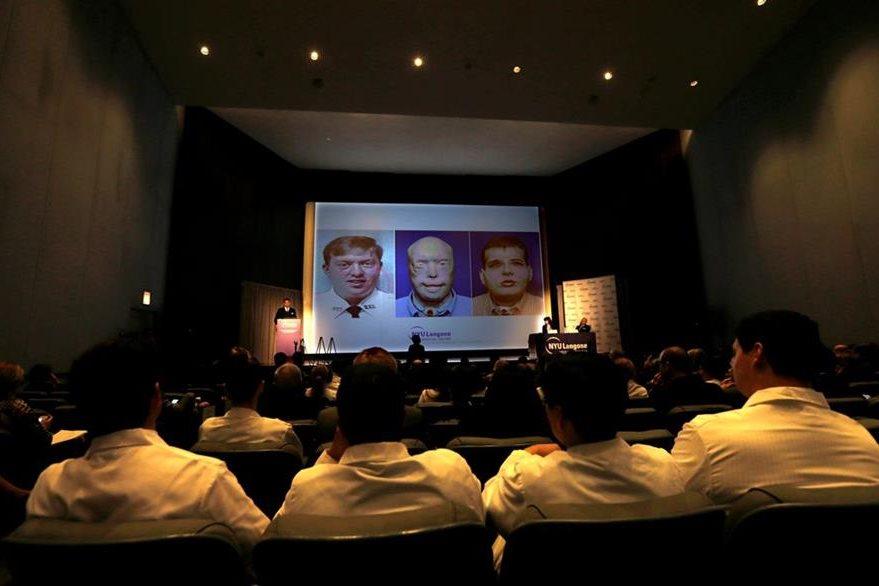 Médicos observan en una pantalla el rostro de Patrick Hardison, antes y después de su accidente, y después de su trasplante facial, durante una rueda de prensa en el Centro Médico Langone de la NYU en Nueva York, Estados Unidos. (Foto Prensa Libre: EFE)