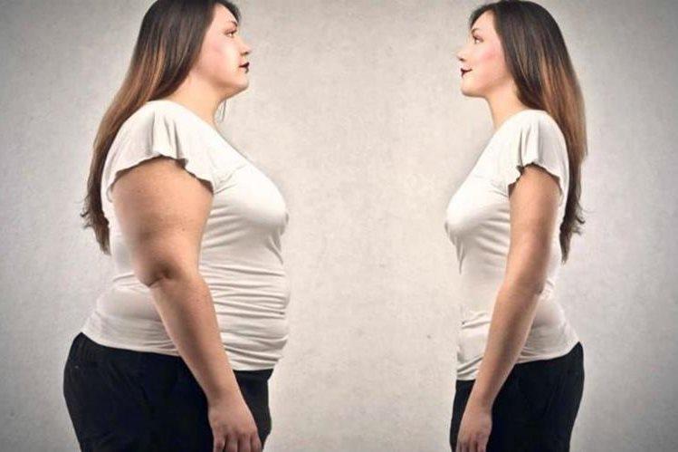 La megarexia es un trastorno que afecta la salud de las personas con obesidad, al no permitirles bajar de peso.