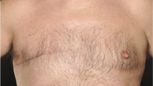 Un pezón que empieza a retraerse sobre sí mismo también puede ser un síntoma de cáncer de mama en los hombres. (Foto, Universal Hospital of Wales)