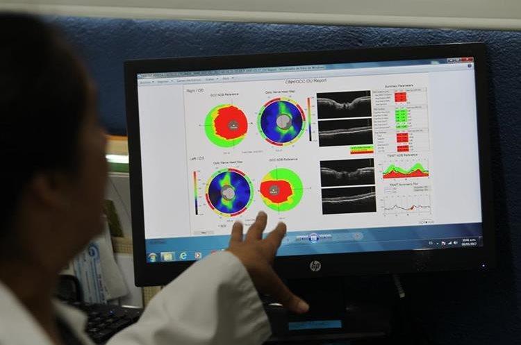 Médico revisa resultados de tomografía practicada al ojo de un paciente, evidenciando pérdida de visión (Foto Prensa Libre: Erick Ávila)