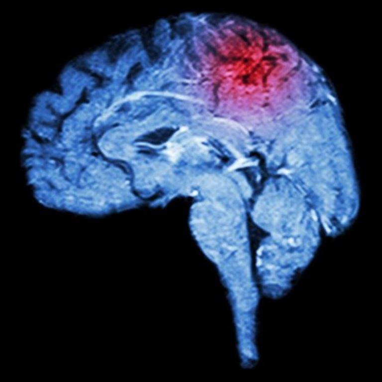 Imagen de resonancia magnética del cerebro y un derrame. (THINKSTOCK)