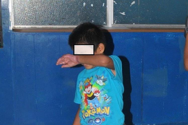 Menor que sufrió la agresión, en Coatepeque, Quetzaltenango. (Foto Prensa Libre: Alexánder Coyoy).