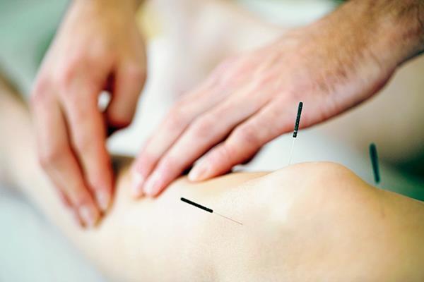 Quienes practican la acupuntura aseguran que puede usarse para tratar problemas en los órganos del cuerpo humano. (Foto Prensa Libre: Hemeroteca PL).